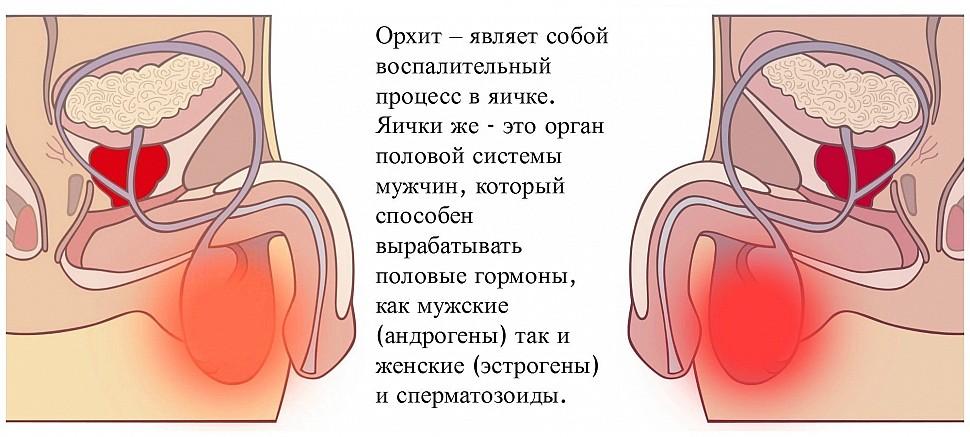 Орхит острый и хронический